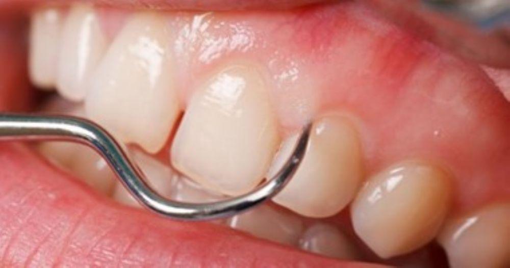 تعرفوا الى خراج الاسنان اسبابه وطريقة علاجه الطب العربي البديل